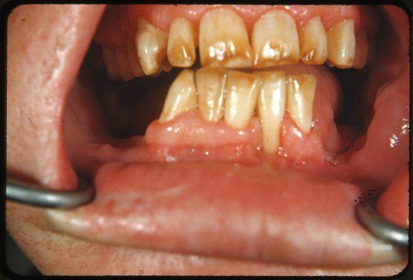 dents jaunes